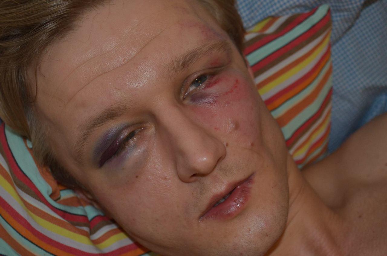Vasyl Cherepanyn VCRC attacked