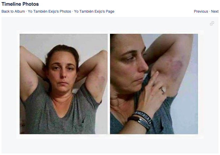 Artist Tania Bruguera showing the bruises she received at the hands of Cuban police during her most recent arrest (screenshot via Facebook)