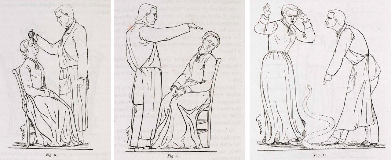 Diagrams of forms of hypnotism, and its effects, 'Iconographie photographique de la Salpêtrière' (1876-80) by D.M. Bourneville and P. Regnard