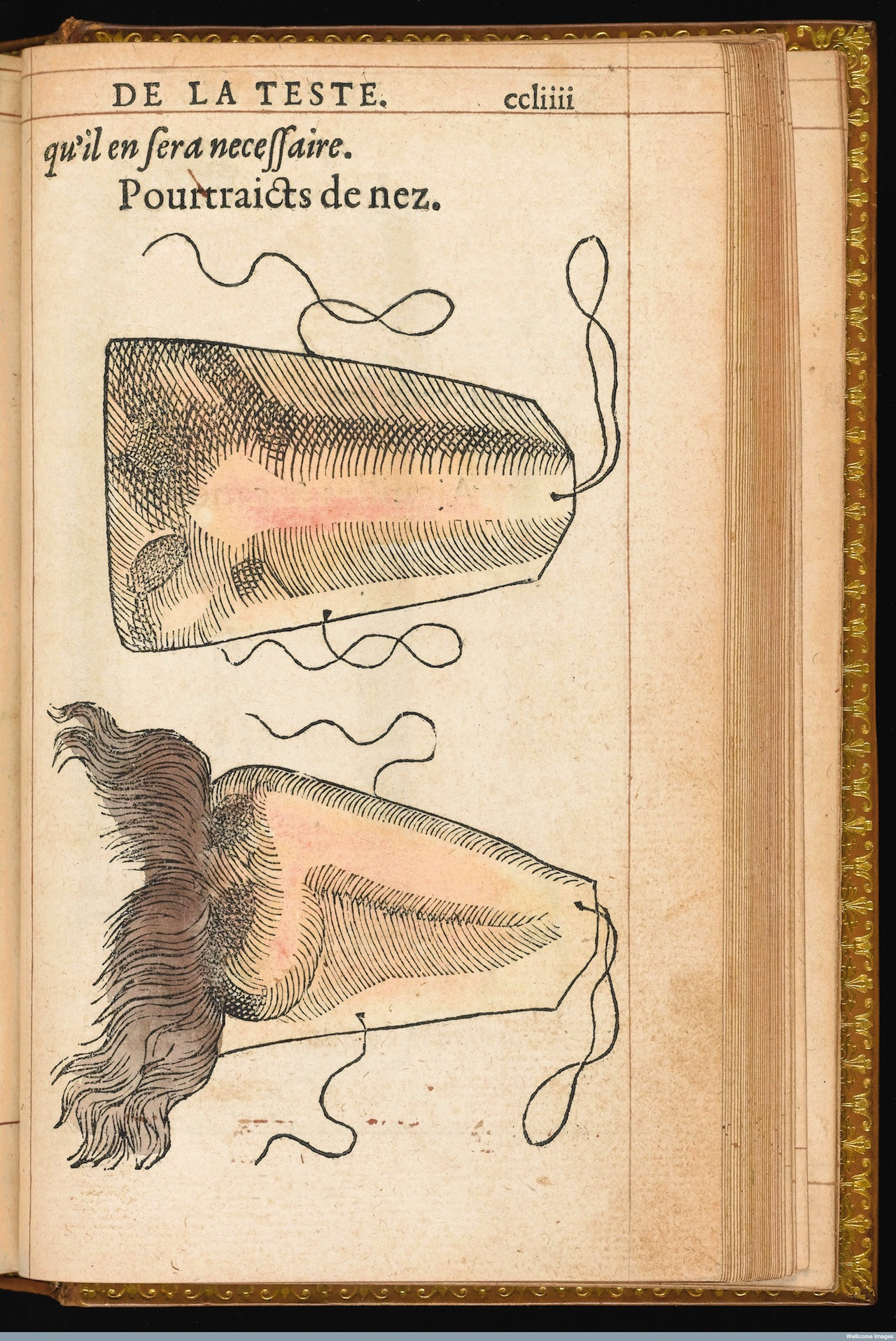 L0041126 Hand coloured illustration of a prosthetic nose. Credit: Wellcome Library, London. Wellcome Images images@wellcome.ac.uk http://wellcomeimages.org Hand coloured illustration of a prosthetic nose. 1561 By: Ambroise ParÈLa methode curative des playes, et fractures de la teste humaine. : Ambroise ParÈ Published: 1561. Copyrighted work available under Creative Commons Attribution only licence CC BY 4.0 http://creativecommons.org/licenses/by/4.0/