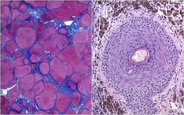 Cirrhosis of the liver and Melanoma