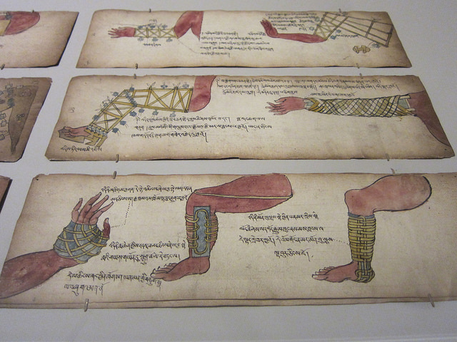Illustrated bone setting manuscript