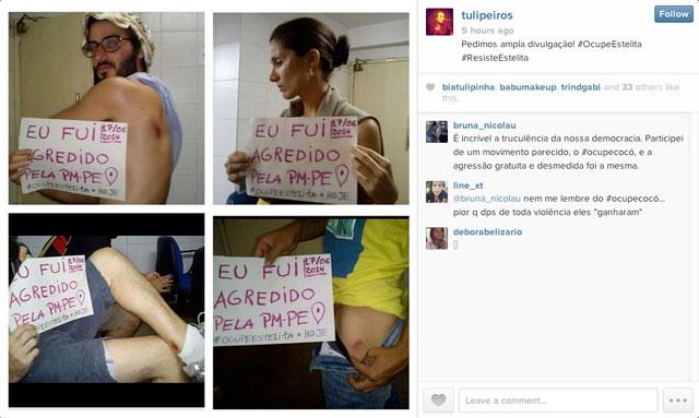 A composite of wounded protestor photos (via tulipeiros on Instagram)