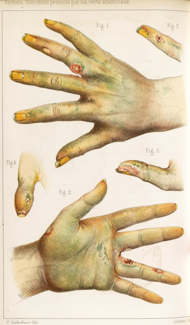 Hands damaged by arsenic dyes, lithography from an 1859 medical journal (via Wellcome Library)