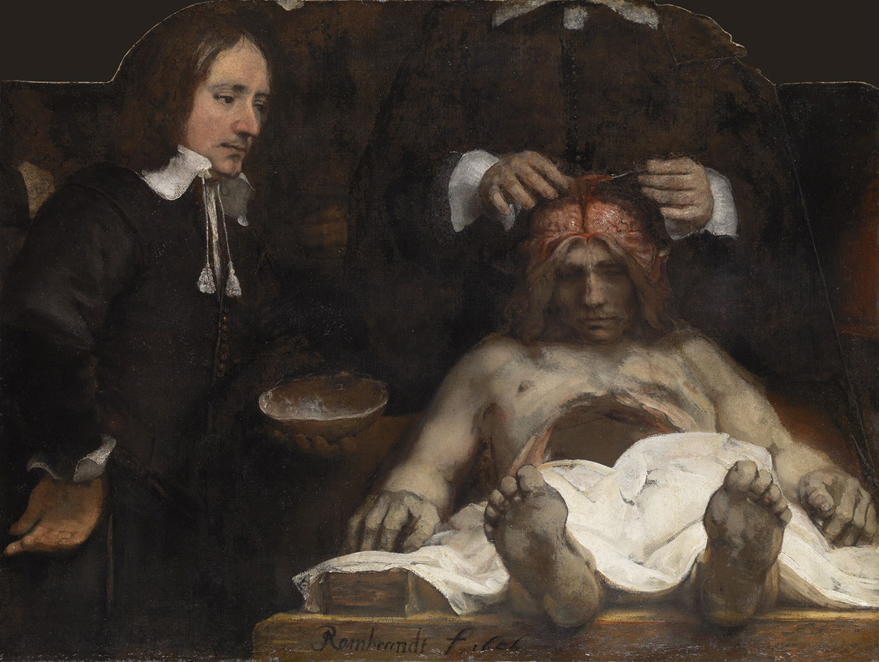 """Rembrandt, """"The Anatomy Lesson of Dr Joan Deyman"""" (1656), oil on canvas, 100 x 134 cm (© Amsterdam Museum, SA 7394)"""