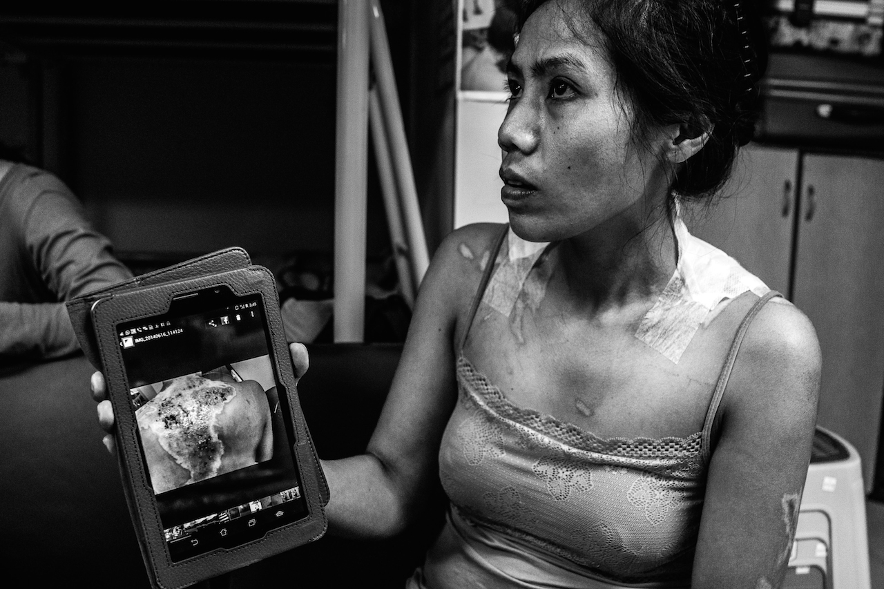 900 square feet of hidden hope. One resident of Bethune House is Shirley showing Images of her burns. Treatment required hospitalization.  Her employer refused doctor-recommended sick leave for recuperation, and terminated Shirley's employment contract which is against Hong Kong labor law. Bethune House, Hong Kong, July 2, 2014. © Xyza Cruz Bacani.