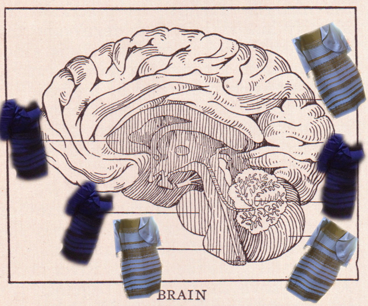 dress-brain-2