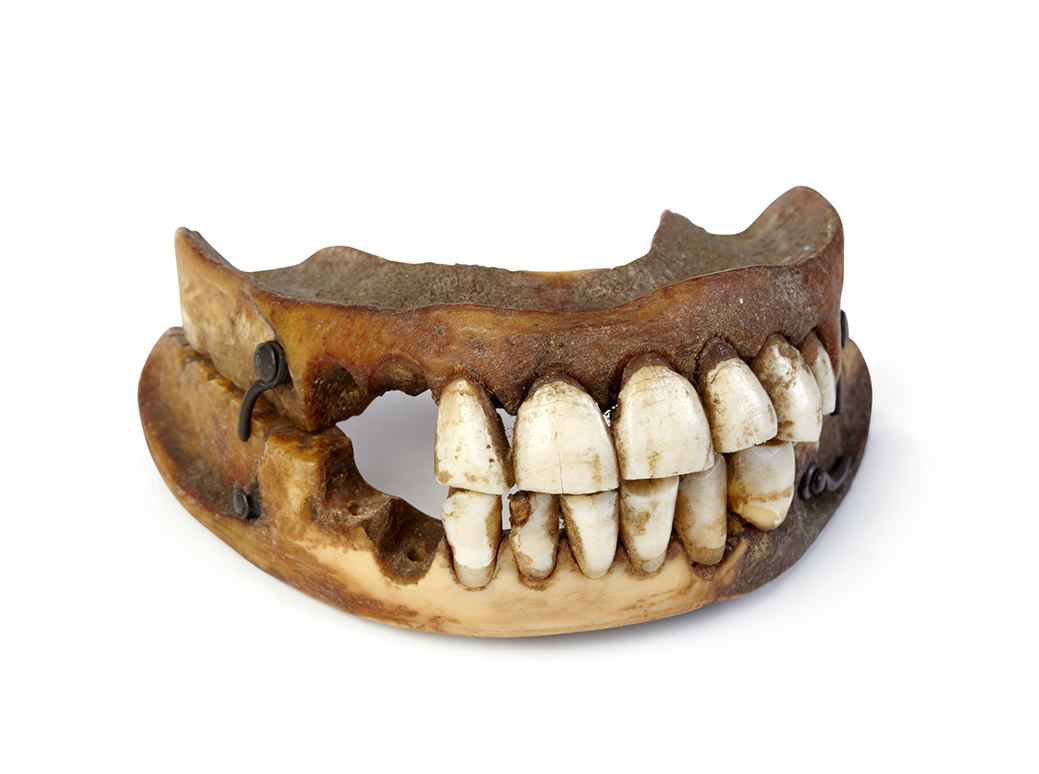 """""""Waterloo teeth"""" made with real human teeth from dead soldiers (courtesy Victoria Gallery & Museum, University of Liverpool. Photography Relic Imaging Ltd.)"""