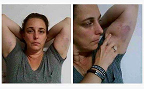 Post image for Artist Tania Bruguera Arrested Again in Havana, Injured by Police