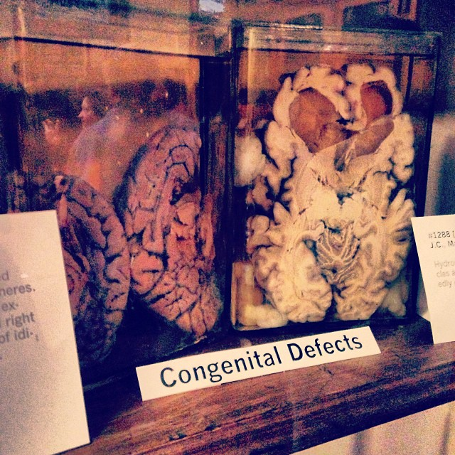 Brain tissue in jars at the Indiana Medical History Museum (photo by @robinwaites/Instagram)