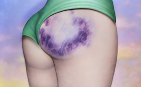 Post image for Paintings of Roller Derby Butt Bruises as Feminist Badges of Honor