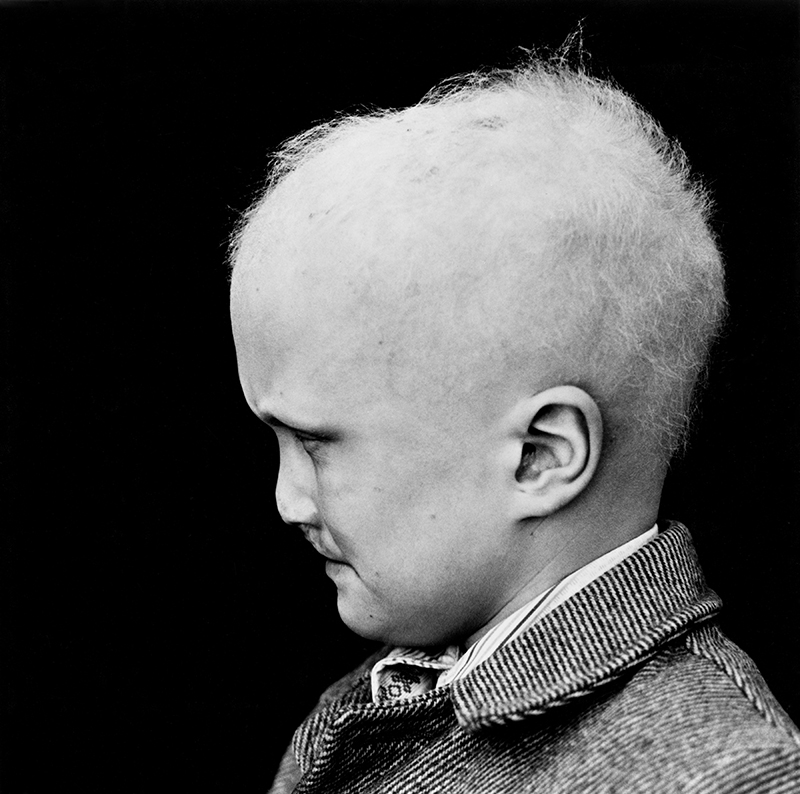 """Wendy Snyder MacNeil, """"Untitled [Boy at Special School]"""" (c. 1975), from the series 'Special School for Special Children,' gelatin silver contact print, Wendy Snyder MacNeil Archive, Ryerson Image Centre (click to enlarge)"""
