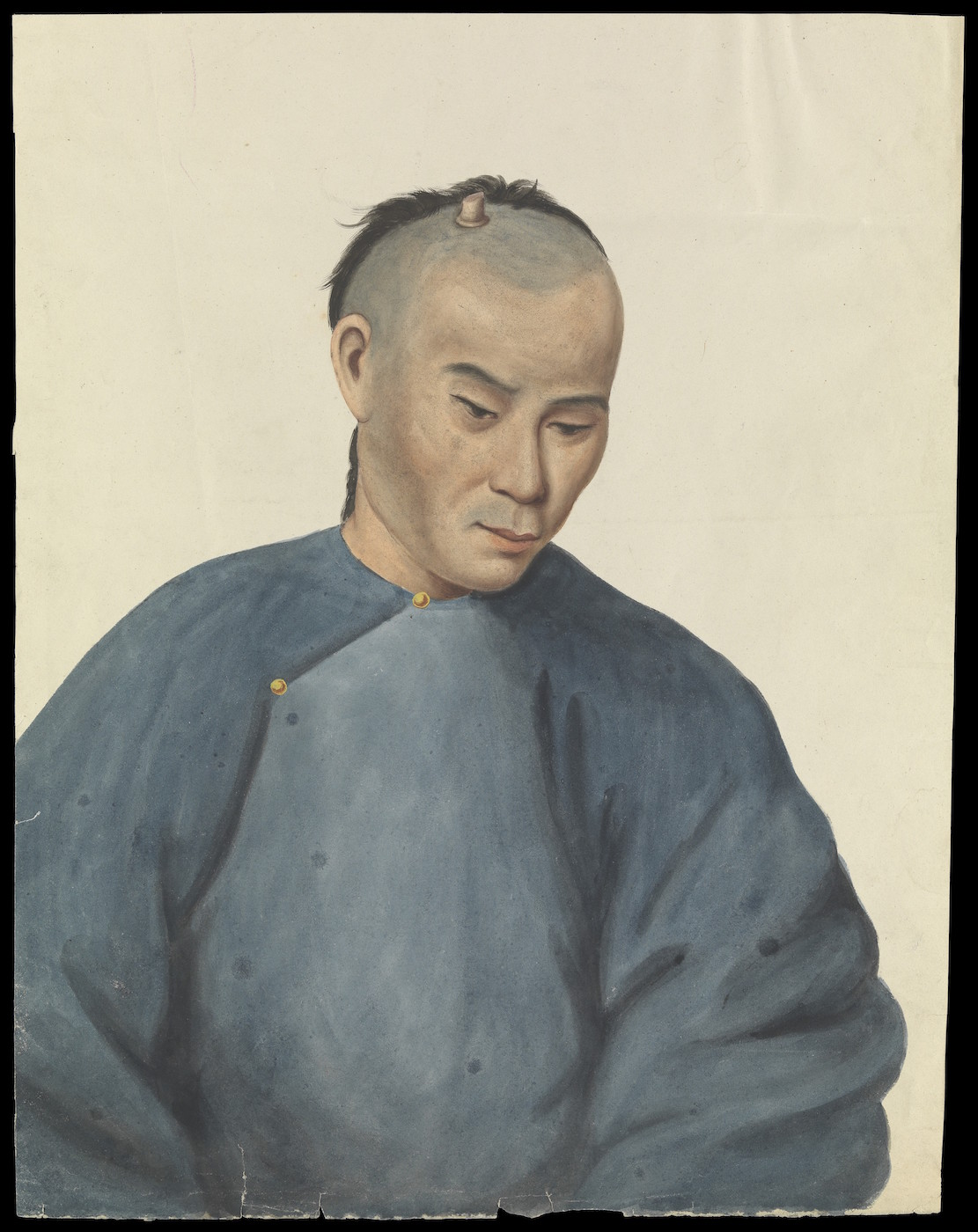 "Guan Qiaochang Lamqua, ""A man with a cutaneous horn-like growth on the scalp"" (via Wellcome Images/Wikimedia)"