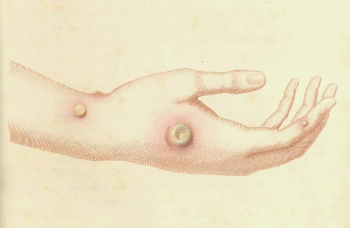 Fascinating Illustrations of 18th-century Inoculations by the Inventor of the Smallpox Vaccine